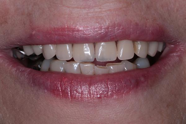 Dentures(After)