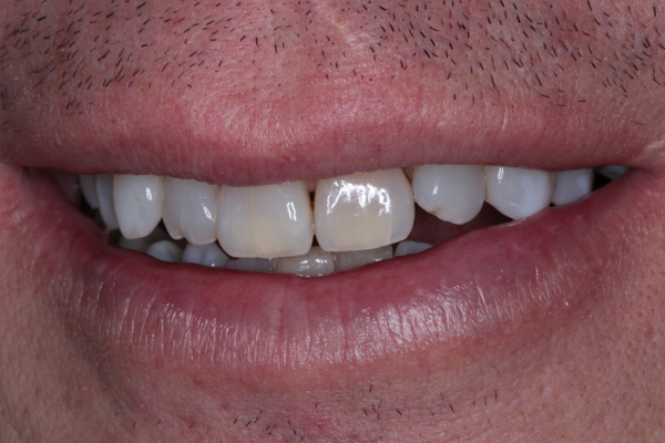 Whitening-(After)