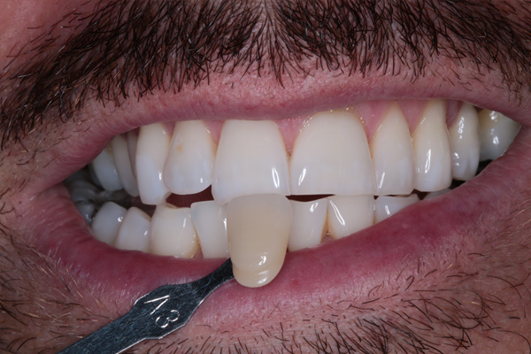 Whitening1-(After)