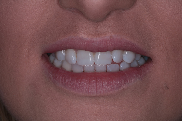 Whitening2-(After)
