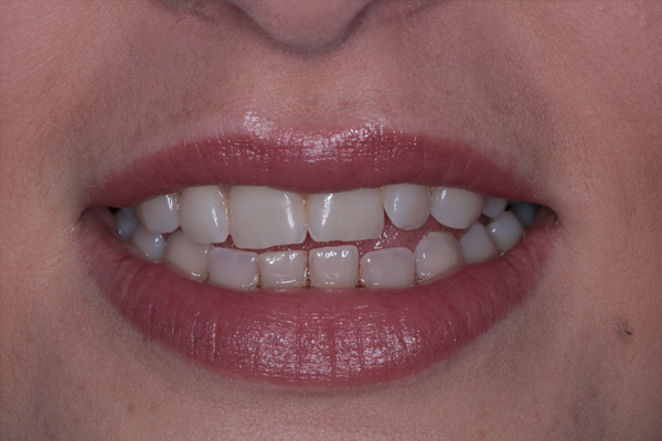Whitening2-(Before)