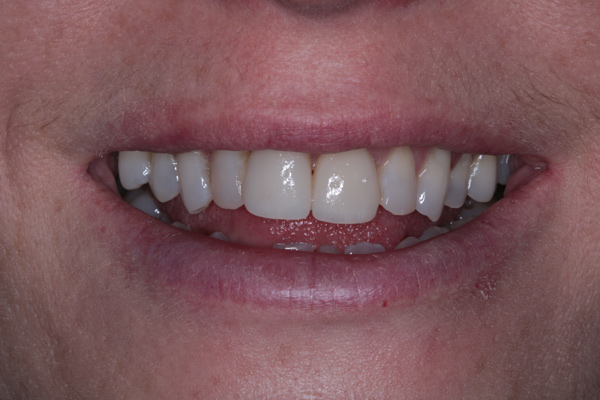 Porcelain-Veneers-After
