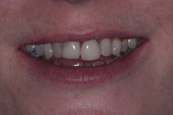 Porcelain-Veneers-Before