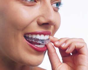 What does Invisalign look like